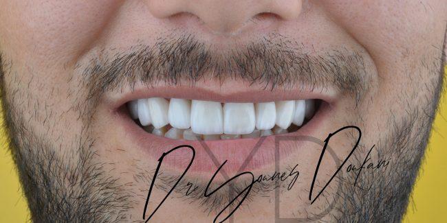 Traitement avec Facette dentaire NNN Veneers et Implant dentaire au Cabinet dentaire Alpha dental en Algérie à Alger