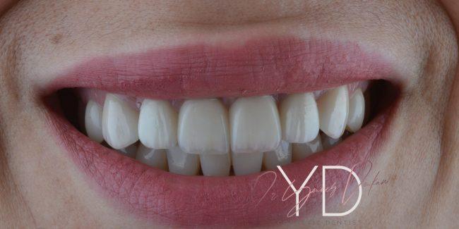 Traitement avec Facette dentaire NNN Veneers au Cabinet dentaire Alpha dental en Algérie à Alger