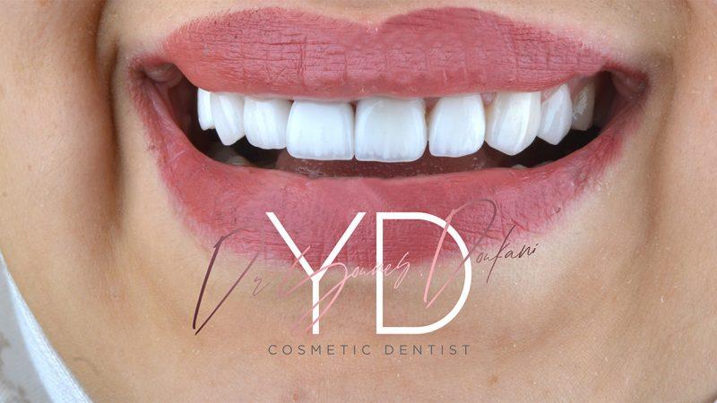 facette dentaire et hollywood smile avec perfect smile nnn veneers au cabinet dentaire alpha dental chirurgien dentiste dr younes doukani Alger en Algérie