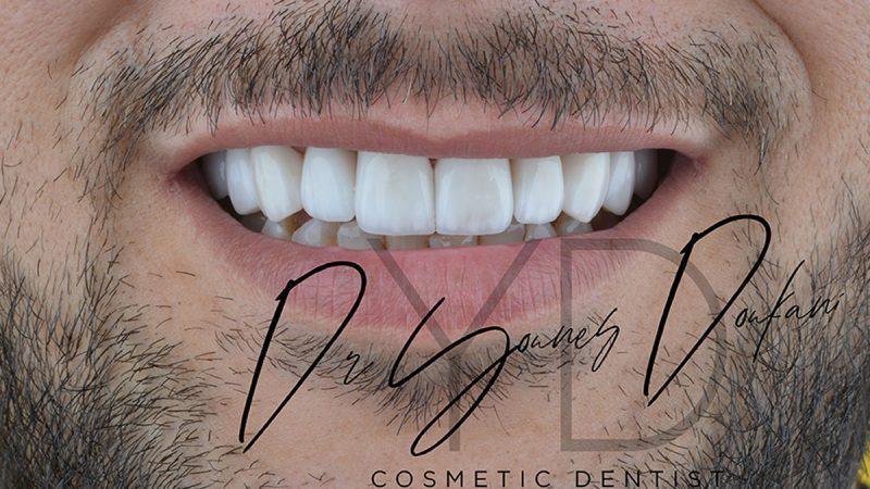 Appareil dentaire ODF en céramique et en métal orthodontie et alignement des dents mal alignées, orthodontiste Alger Algérie Cabinet dentaire Alpha Dental du Chirurgien dentiste Dr Younes Doukani à Alger